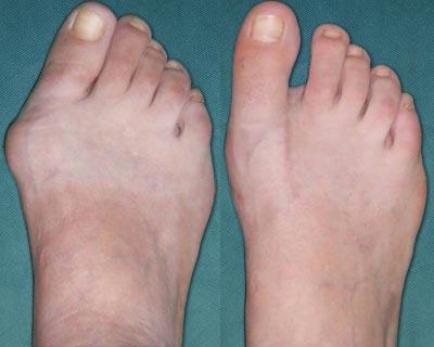 Operative treatment of hallux valgus (Bunion Deformity)