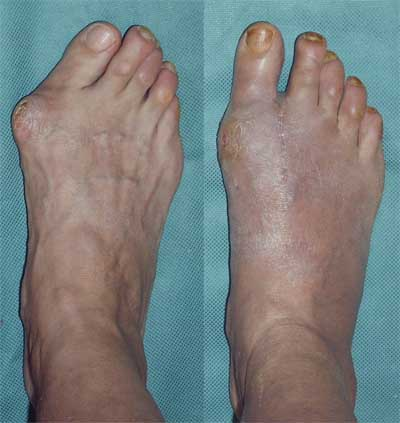 Operative treatment of hallux valgus (Bunion Deformity)