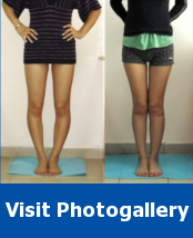 Photos of Patient Before and After Bow Legs Correction and Height Increase