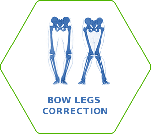 Bow Legs Correction (O-, X- shape correction)