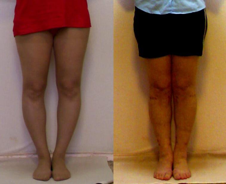 Как сделать ноги красивые и стройные