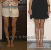 Treatment of bowlegs in Russia