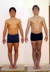 Height increase (lower legs lengthening) and legs correction