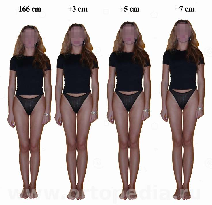 Legs proportions changing after Leg lengthening